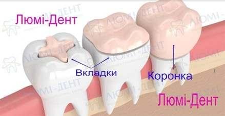 Koronky1